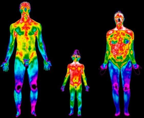 exame-de-termografia-para-dores-crônicas - Jornal da Cidade